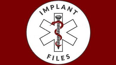 Cosa è Implant Files, l'inchiesta mondiale per proteggere la salute dei cittadini