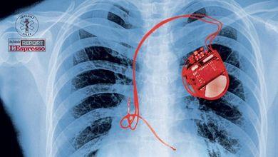 Migliaia di pazienti uccisi da protesi velenose o difettose: ecco l'inchiesta Implant Files
