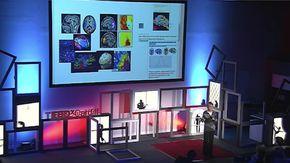 Cervello maschile e femminile, il neurosessismo che crea stereotipi