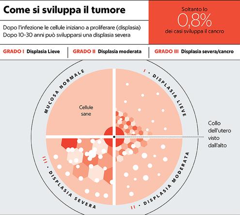 hpv e tumore alla cervice
