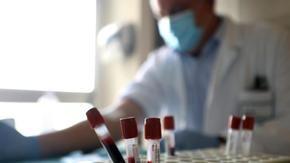 Sono positivi sul coronavirus, ma funzionano allo stesso modo: è stata denunciata l'epidemia colpevole