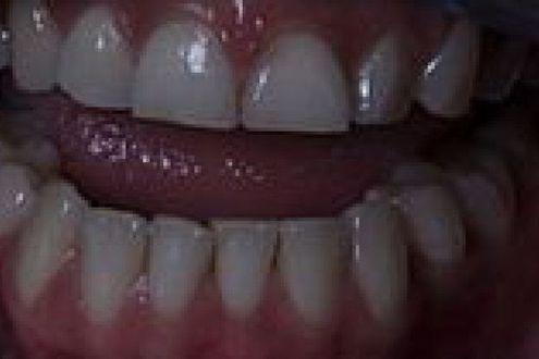 Bruxismo lansia che spacca i denti. segnali e consigli per