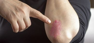 infezione sistemica della pelle