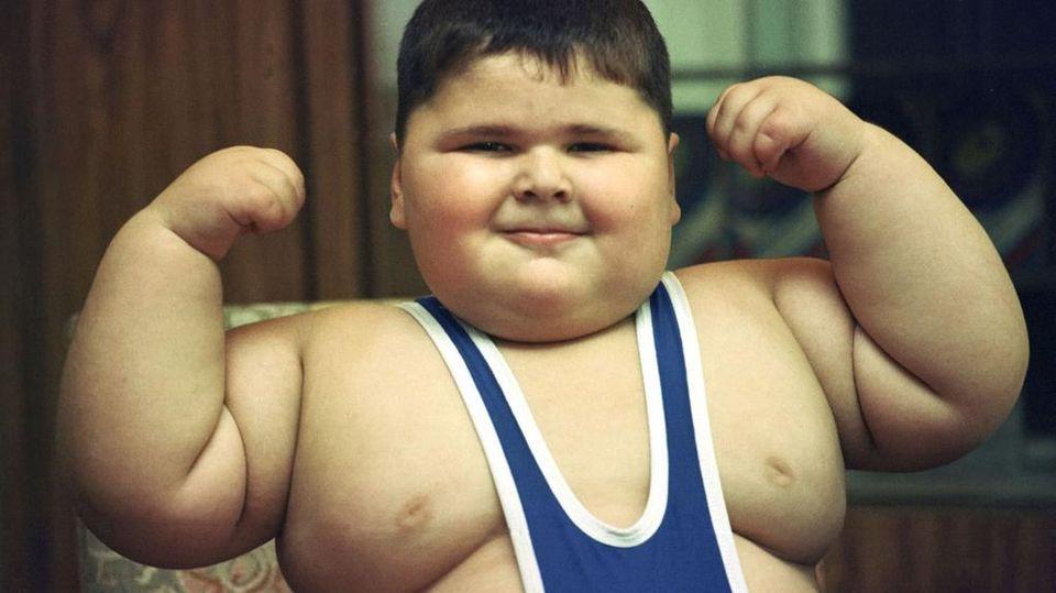 Risultato immagini per bambino obeso