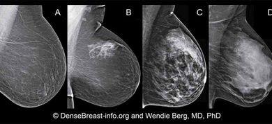 Tumore al seno: stadiazione, prognosi e sopravvivenza ...