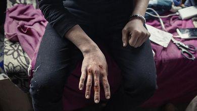 Il sadico gioco dell'oca con i migranti, al confine tra Italia e Slovenia