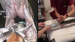 Pitone ingoia un intero telo da mare, così i veterinari riescono ad estrarlo e salvarlo