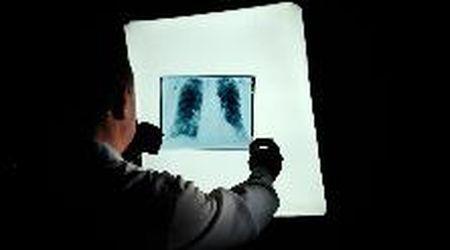 Cancro al polmone, un esame per scoprirlo agli inizi e nuove cure efficaci: ecco quali