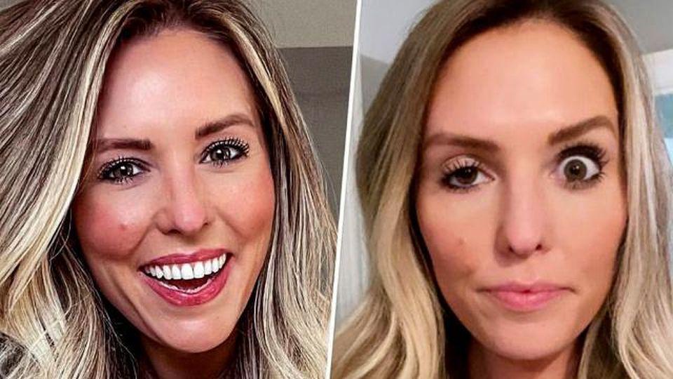 Influencer rivela i disastrosi effetti collaterali del botox mal riuscito